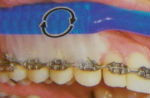 braces highlands ranch co